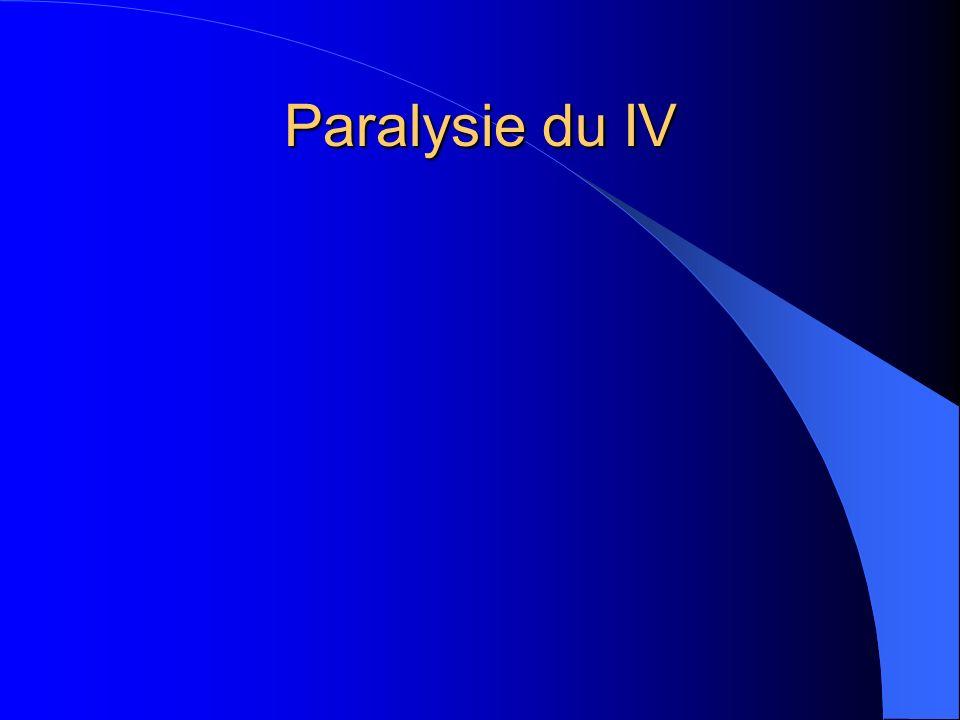 Paralysie du IV
