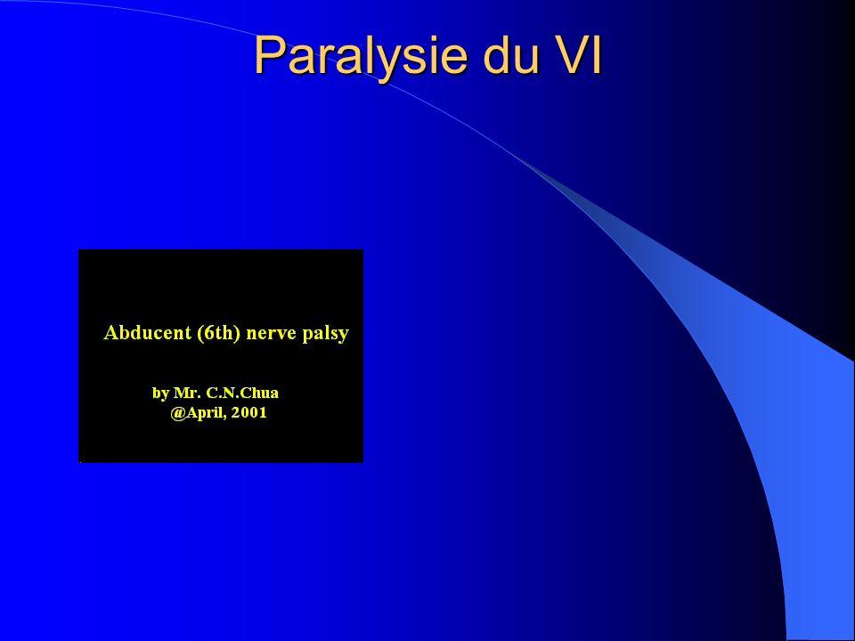 Paralysie du VI
