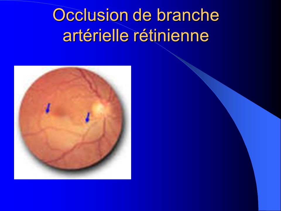 Occlusion de branche artérielle rétinienne