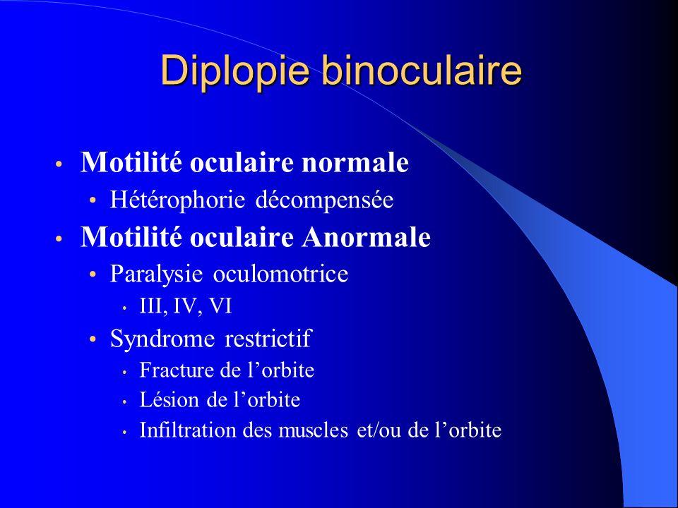 Diplopie binoculaire Motilité oculaire normale