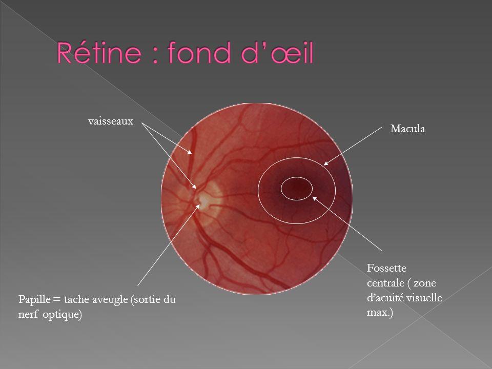 Rétine : fond d'œil vaisseaux Macula