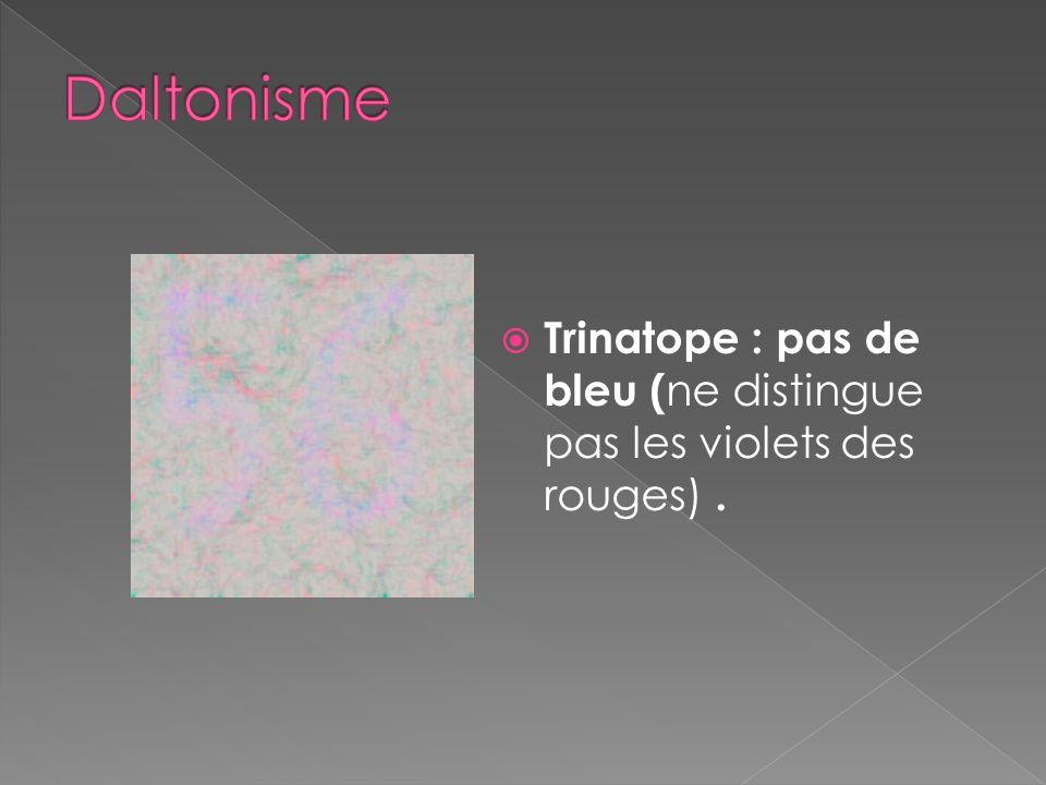 Daltonisme Trinatope : pas de bleu (ne distingue pas les violets des rouges) .