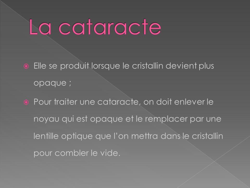 La cataracte Elle se produit lorsque le cristallin devient plus opaque ;