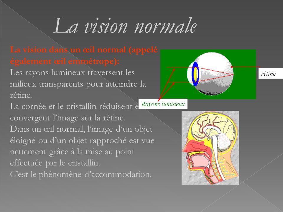 La vision normale La vision dans un œil normal (appelé également œil emmétrope):