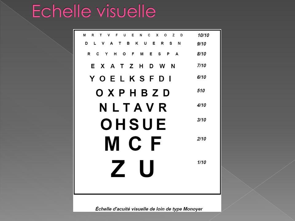 Echelle visuelle