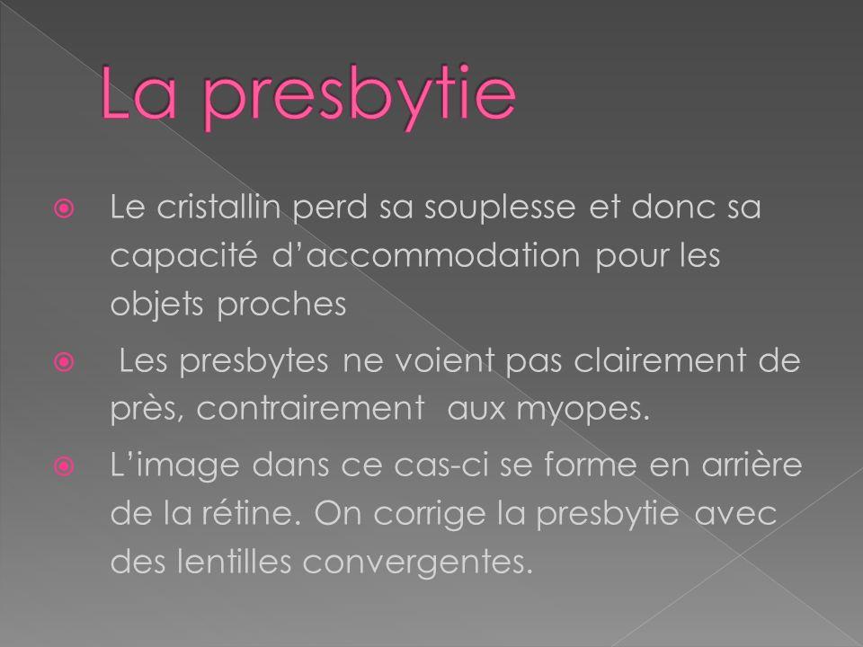 La presbytie Le cristallin perd sa souplesse et donc sa capacité d'accommodation pour les objets proches.