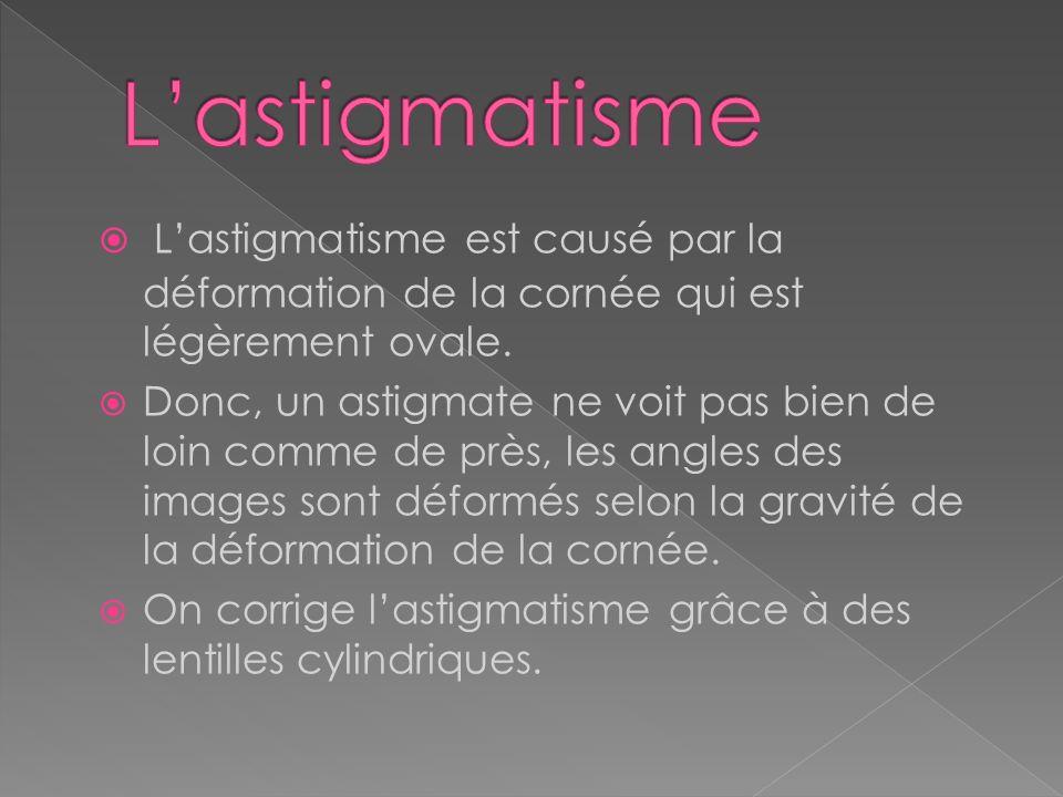 L'astigmatisme L'astigmatisme est causé par la déformation de la cornée qui est légèrement ovale.