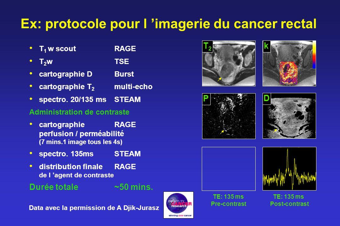 Ex: protocole pour l 'imagerie du cancer rectal