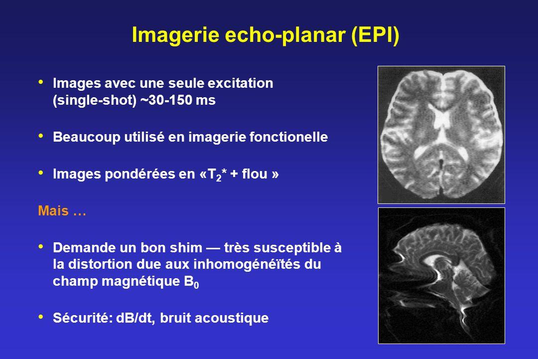 Imagerie echo-planar (EPI)