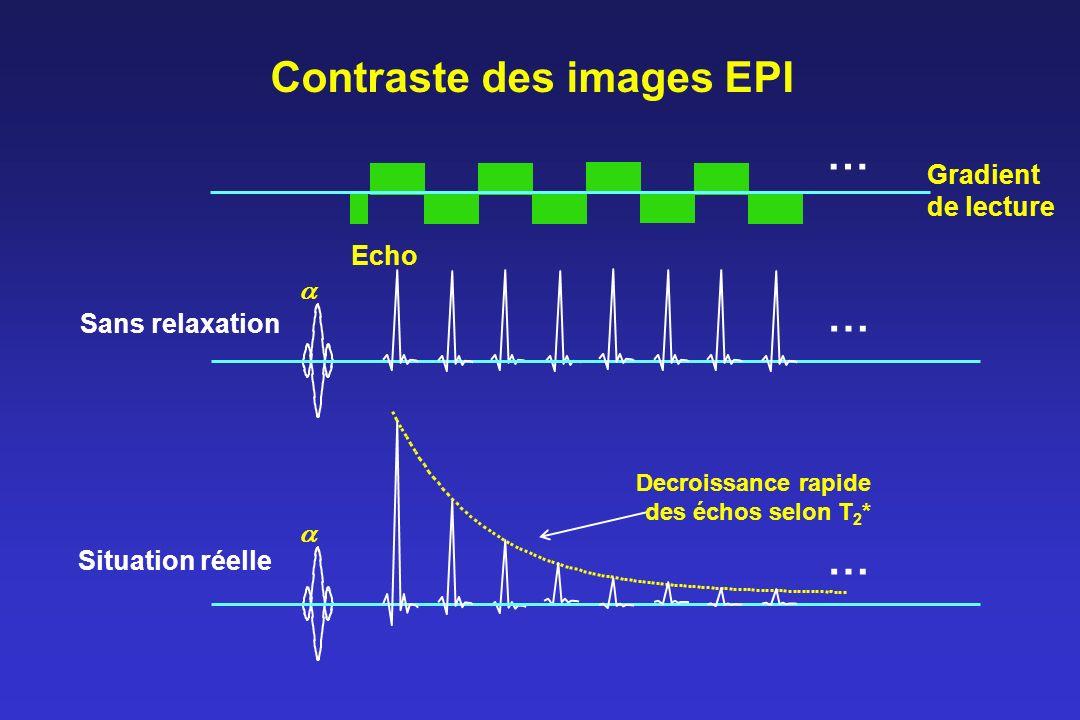 Contraste des images EPI