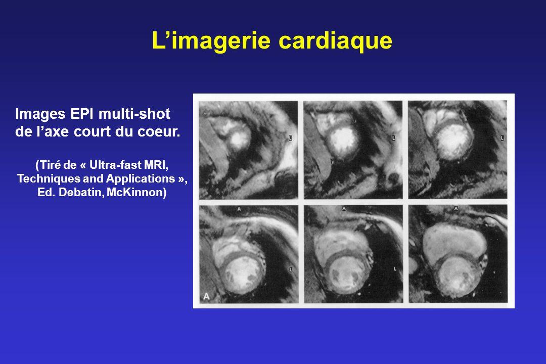 L'imagerie cardiaque Images EPI multi-shot de l'axe court du coeur.