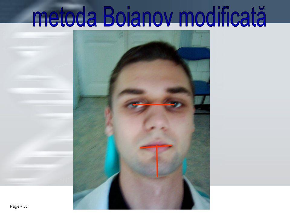 metoda Boianov modificată