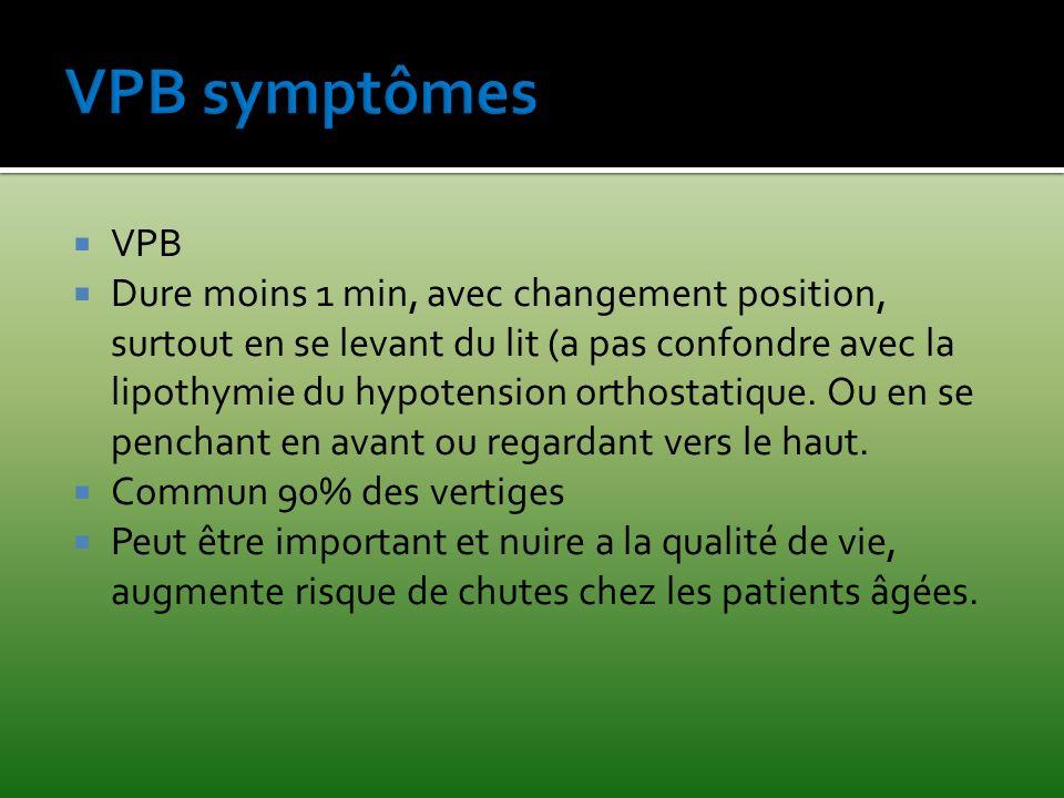 VPB symptômes VPB.