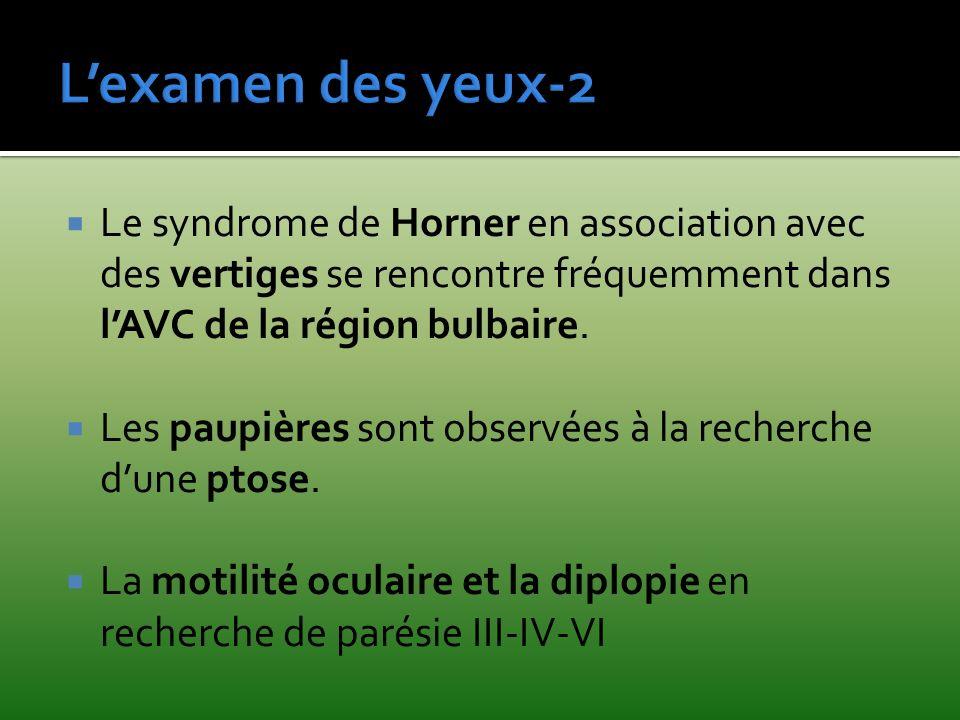 L'examen des yeux-2 Le syndrome de Horner en association avec des vertiges se rencontre fréquemment dans l'AVC de la région bulbaire.