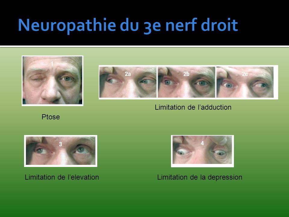Neuropathie du 3e nerf droit