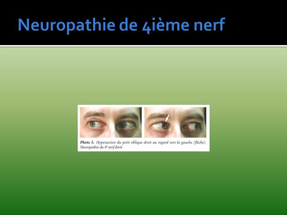 Neuropathie de 4ième nerf