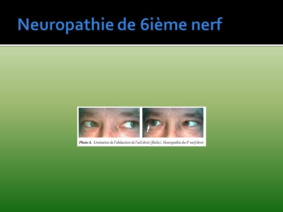 Neuropathie de 6ième nerf