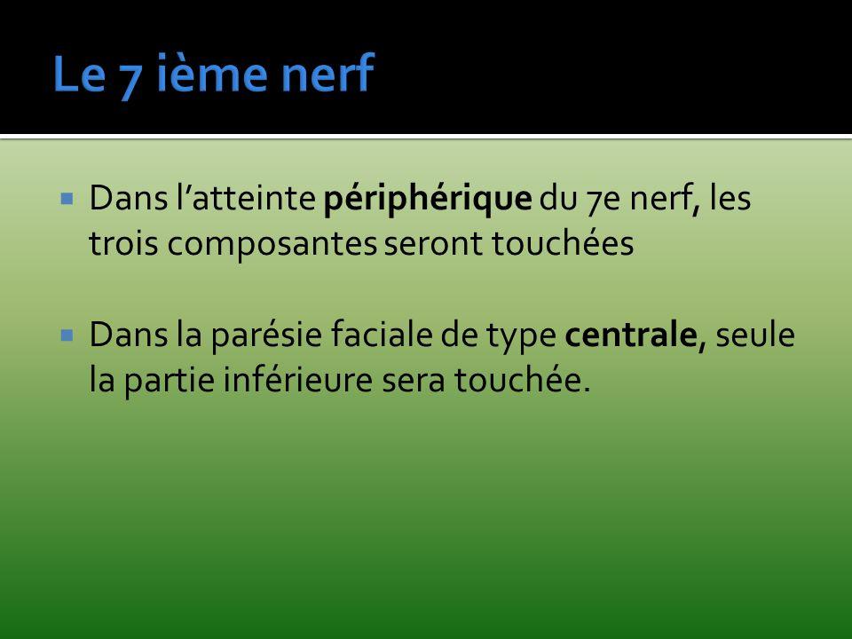 Le 7 ième nerf Dans l'atteinte périphérique du 7e nerf, les trois composantes seront touchées.