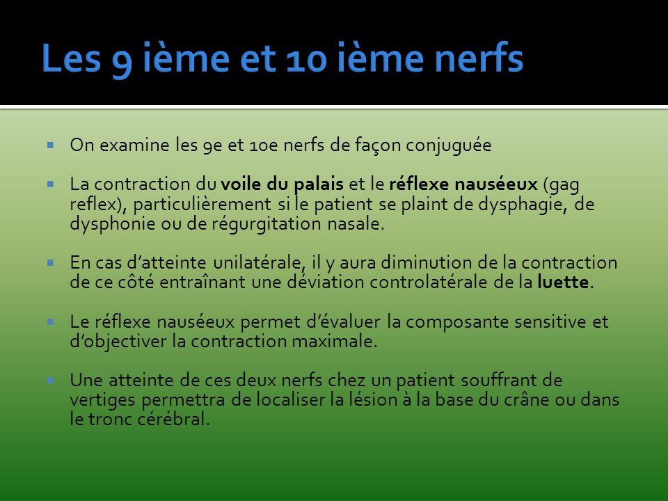 Les 9 ième et 10 ième nerfs On examine les 9e et 10e nerfs de façon conjuguée.