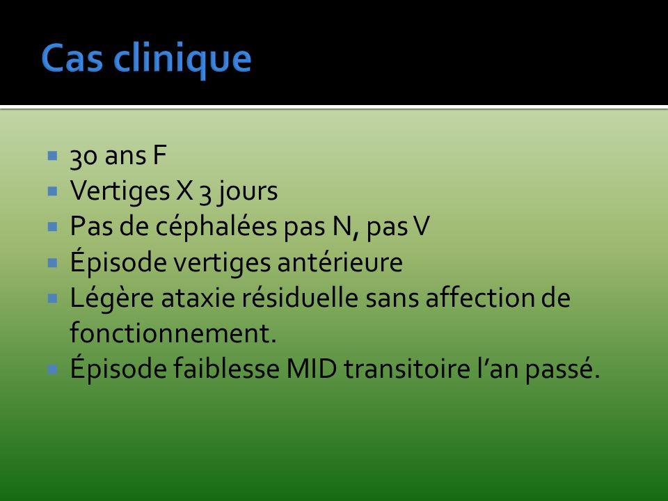 Cas clinique 30 ans F Vertiges X 3 jours Pas de céphalées pas N, pas V