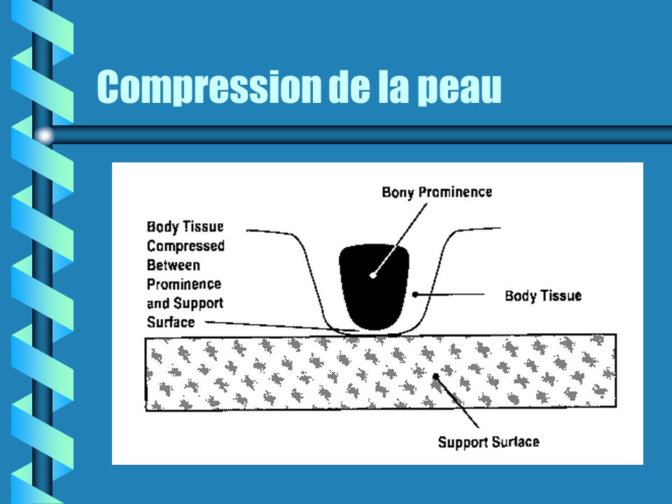 Compression de la peau