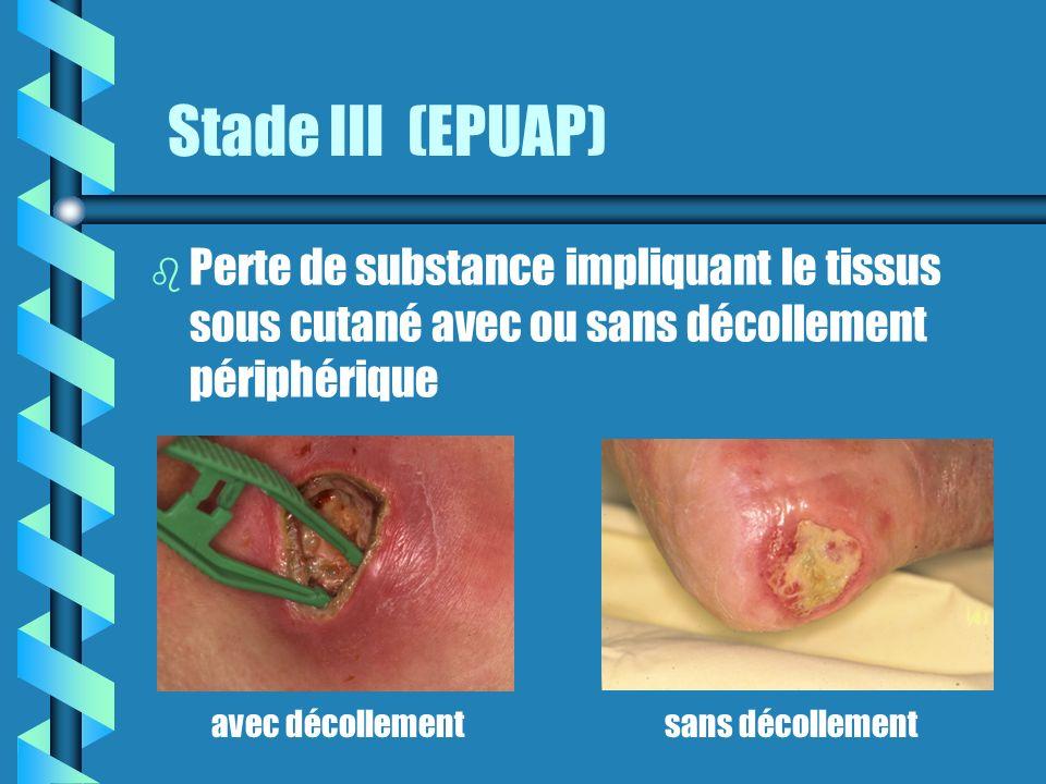 Stade III (EPUAP) Perte de substance impliquant le tissus sous cutané avec ou sans décollement périphérique.