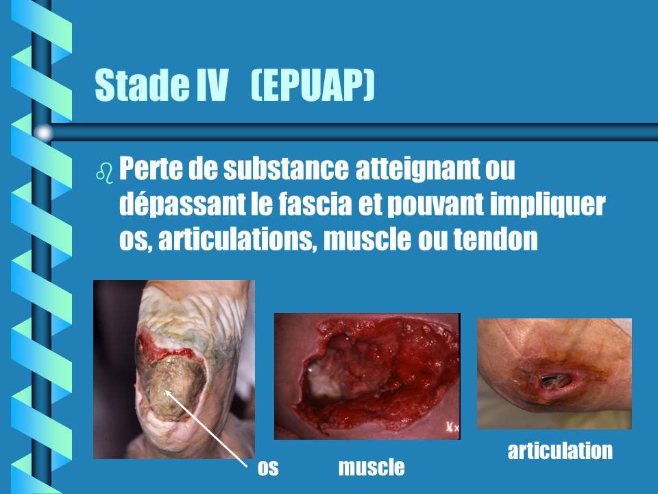 Stade IV (EPUAP) Perte de substance atteignant ou dépassant le fascia et pouvant impliquer os, articulations, muscle ou tendon.