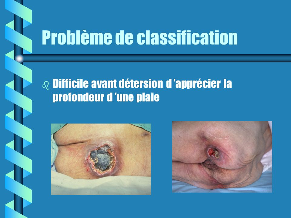 Problème de classification