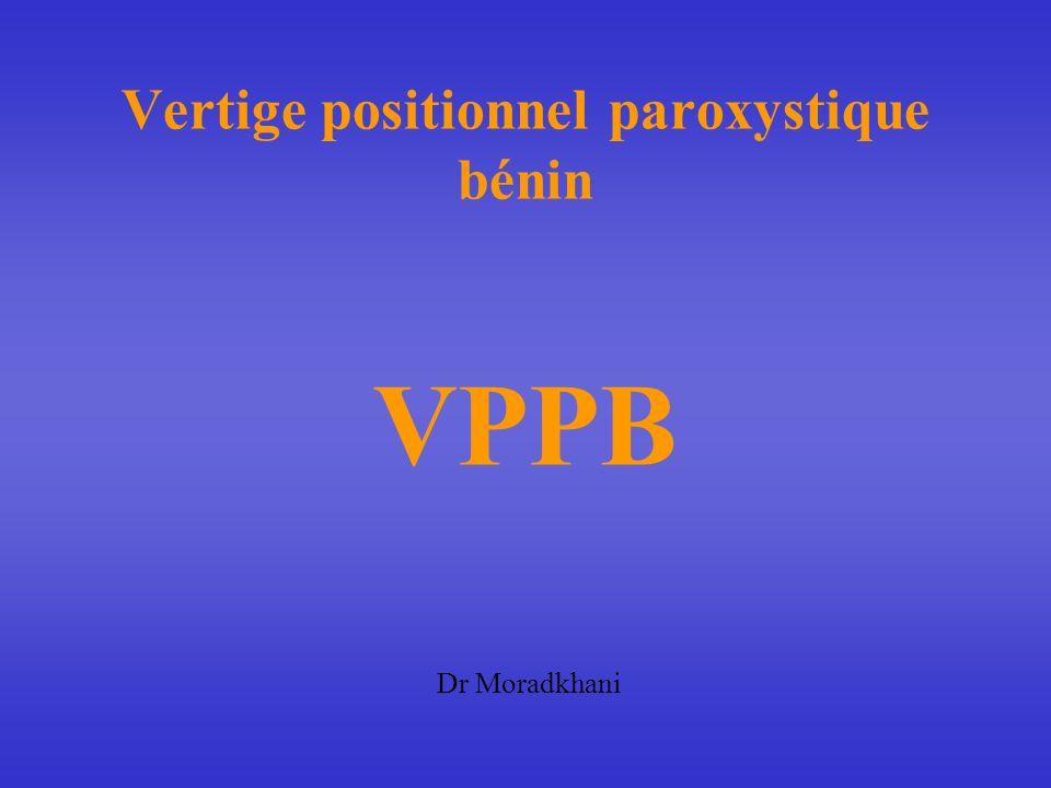 Vertige positionnel paroxystique bénin VPPB