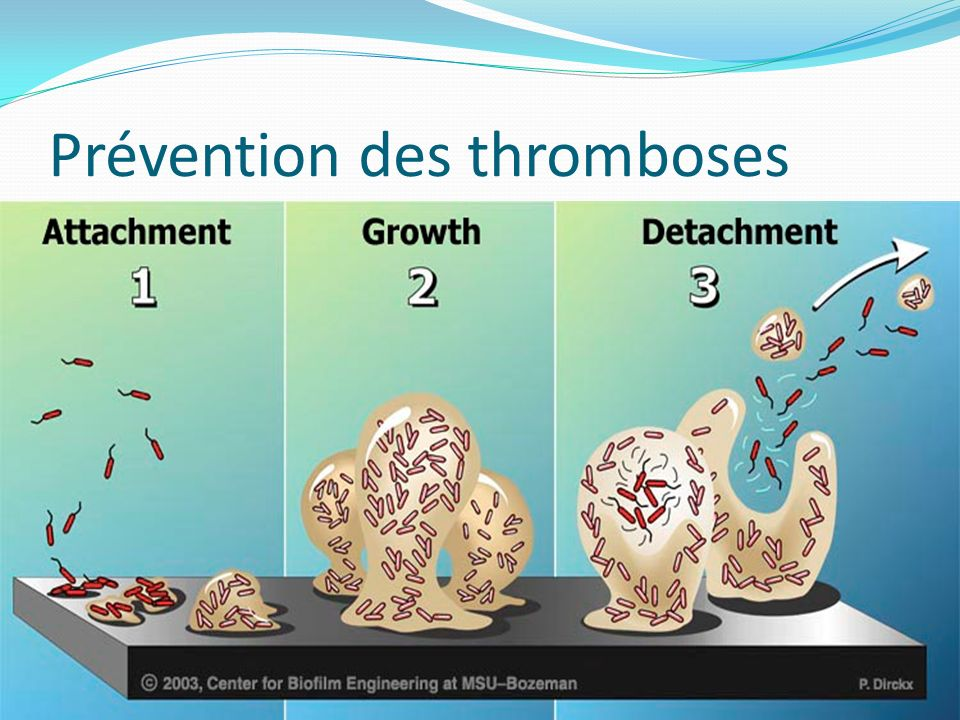 Prévention des thromboses