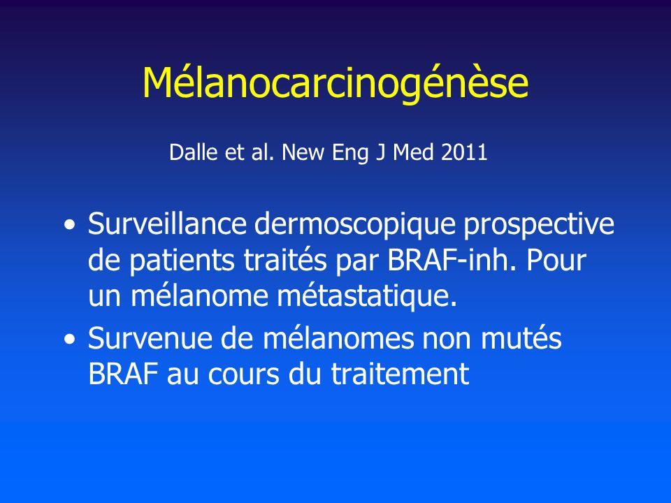 Mélanocarcinogénèse Dalle et al. New Eng J Med 2011.