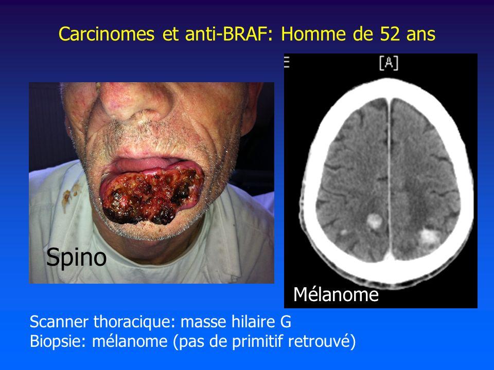 Carcinomes et anti-BRAF: Homme de 52 ans
