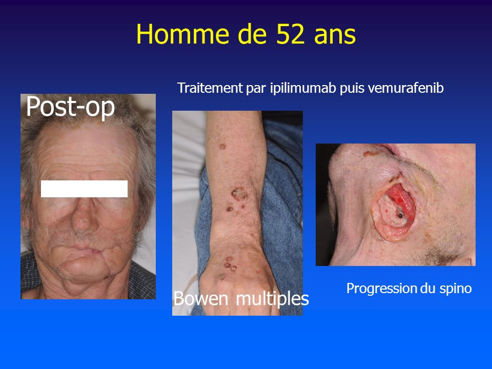 Homme de 52 ans Post-op Bowen multiples