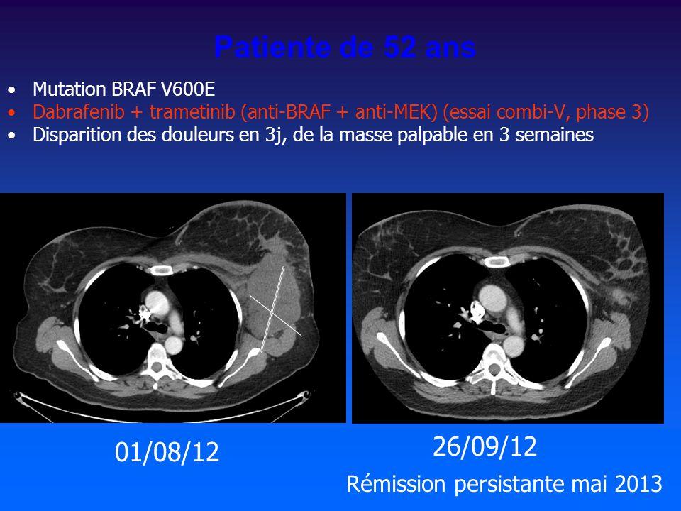 Patiente de 52 ans 26/09/12 01/08/12 Rémission persistante mai 2013