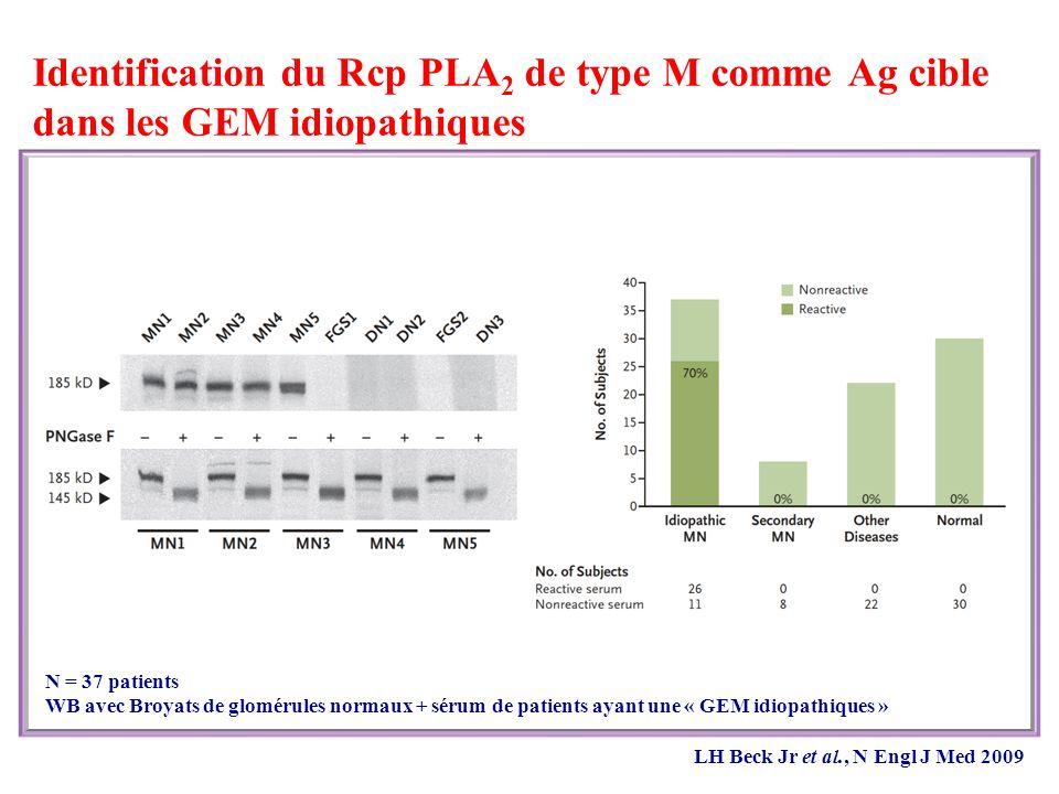 Identification du Rcp PLA2 de type M comme Ag cible dans les GEM idiopathiques