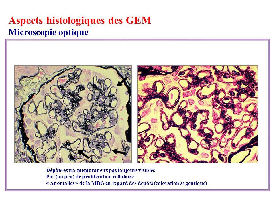Aspects histologiques des GEM Microscopie optique