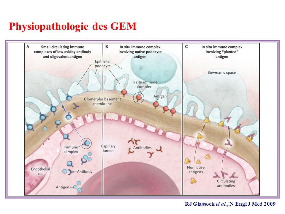 Physiopathologie des GEM
