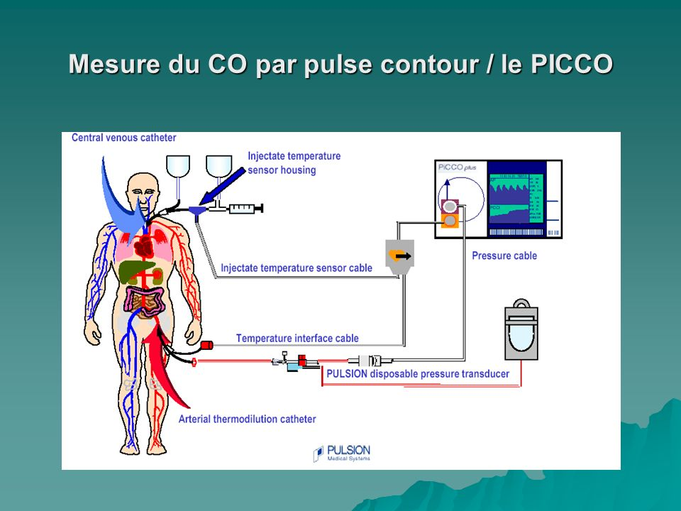 Mesure du CO par pulse contour / le PICCO