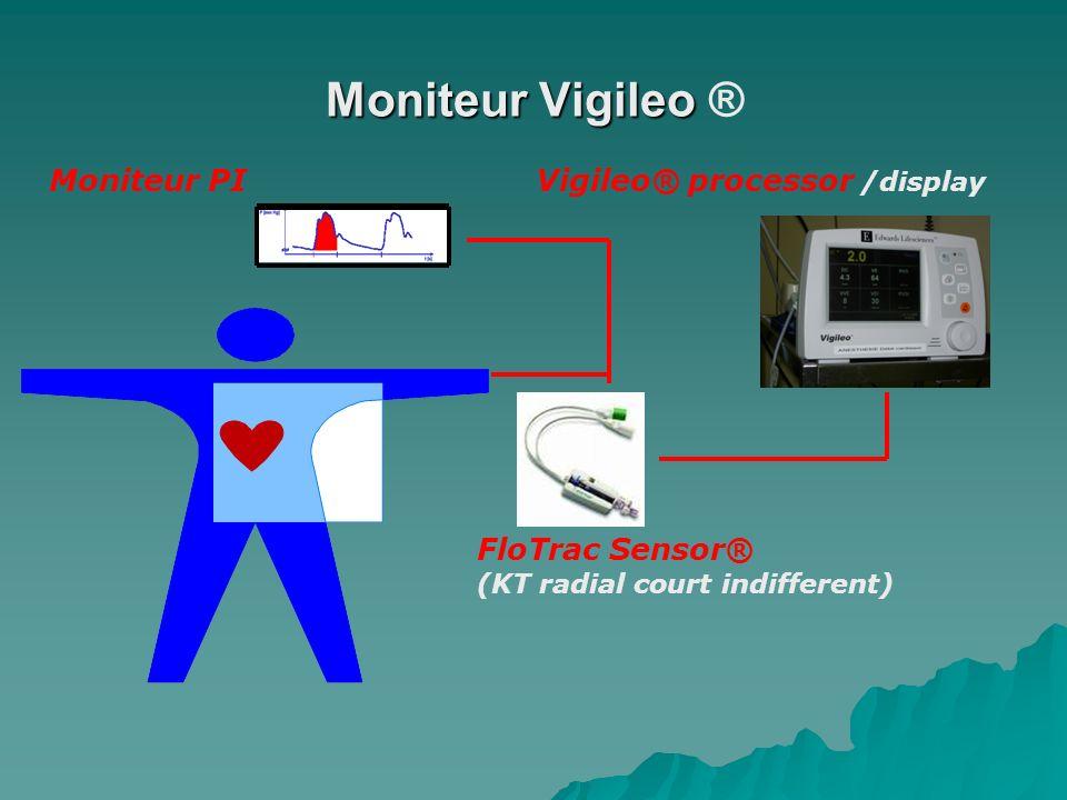 Moniteur Vigileo ® Moniteur PI Vigileo® processor /display