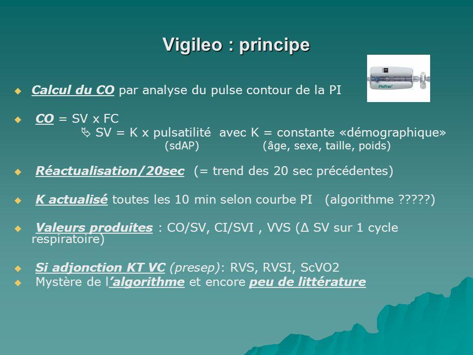 Vigileo : principe Calcul du CO par analyse du pulse contour de la PI