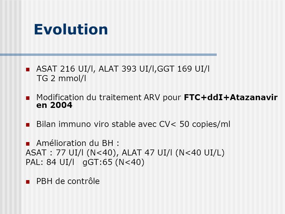 Evolution ASAT 216 UI/l, ALAT 393 UI/l,GGT 169 UI/l TG 2 mmol/l