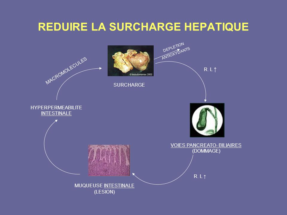 REDUIRE LA SURCHARGE HEPATIQUE