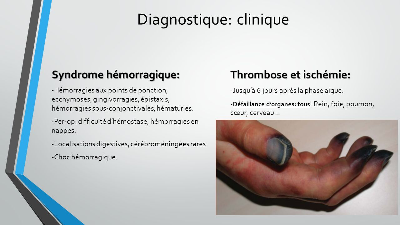 Diagnostique: clinique