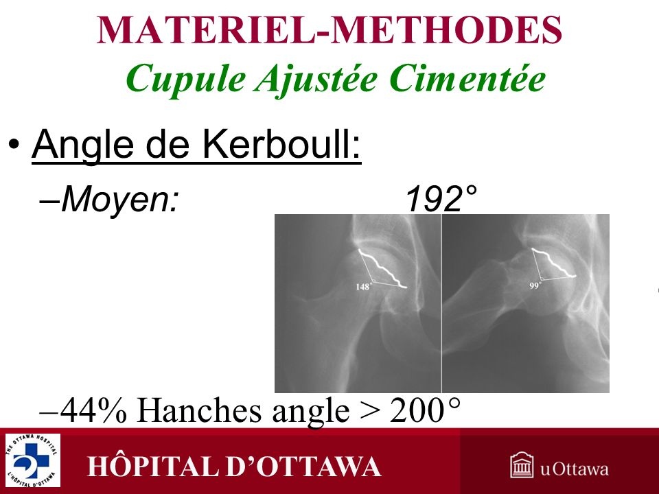MATERIEL-METHODES Cupule Ajustée Cimentée