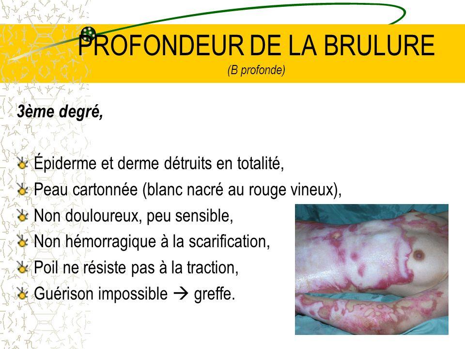 PROFONDEUR DE LA BRULURE (B profonde)