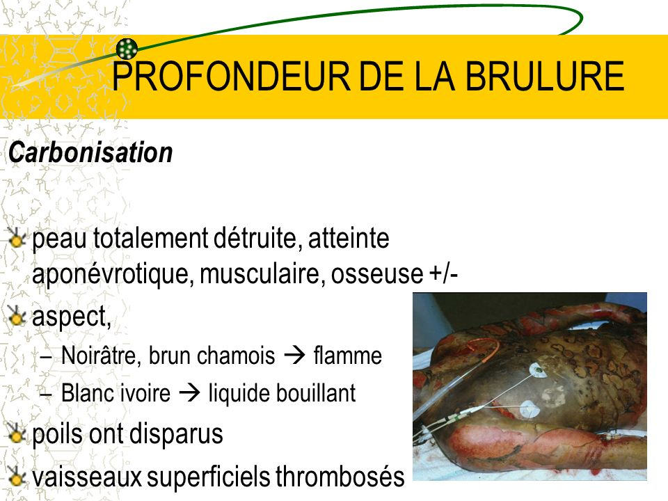 PROFONDEUR DE LA BRULURE