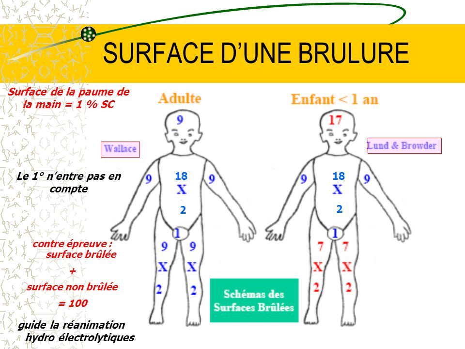 SURFACE D'UNE BRULURE Surface de la paume de la main = 1 % SC