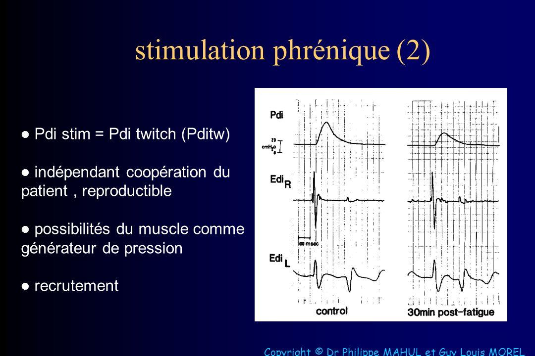 stimulation phrénique (2)