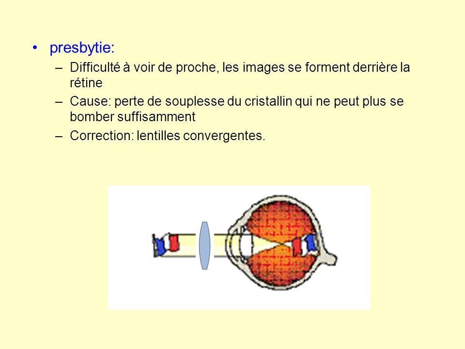 presbytie: Difficulté à voir de proche, les images se forment derrière la rétine.