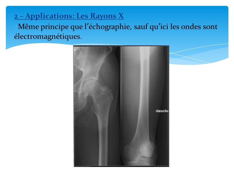 2 – Applications: Les Rayons X